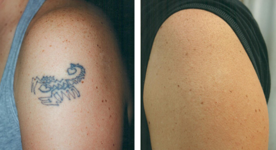laser tattoo removal ageless splendor perfect skin