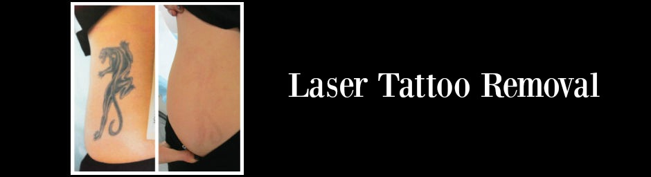 ageless splendor laser tattoo removal