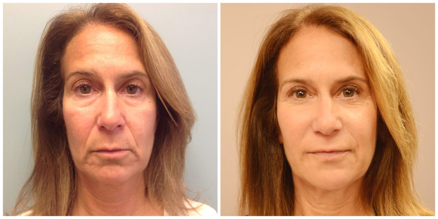 after nonsurgical facelift