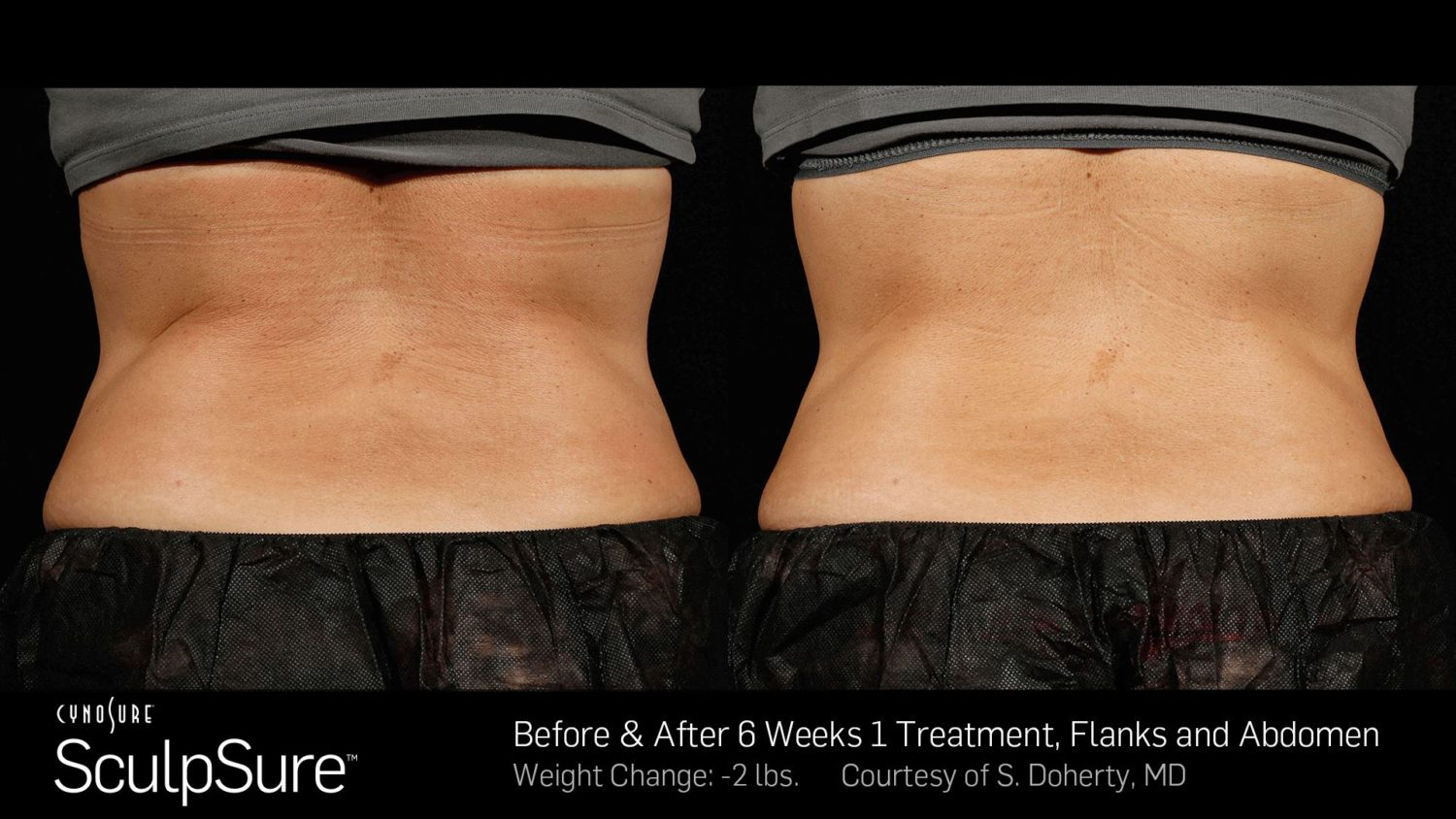 after sculpsure